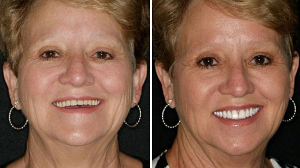 Before and After Fountain of Youth Dentures™