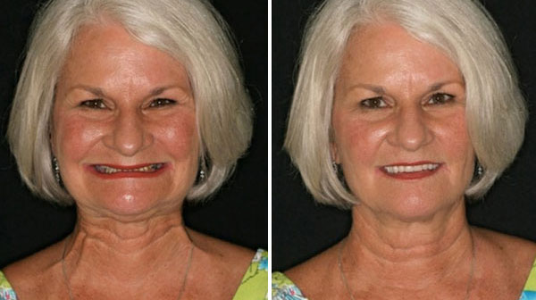 Before and After 2 Fountain of Youth Dentures™