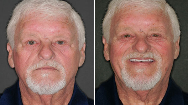 Before and After 3 Fountain of Youth Dentures™